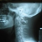 Radiograph of spine